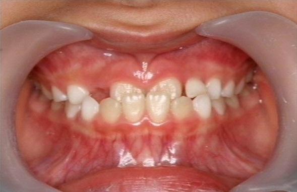 久喜市久喜の矯正・矯正歯科の関根歯科医院のお子さまの歯並びについて