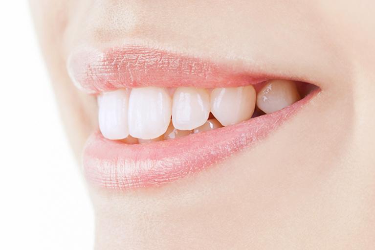 久喜市久喜の矯正・矯正歯科の関根歯科医院で歯並びをきれいに