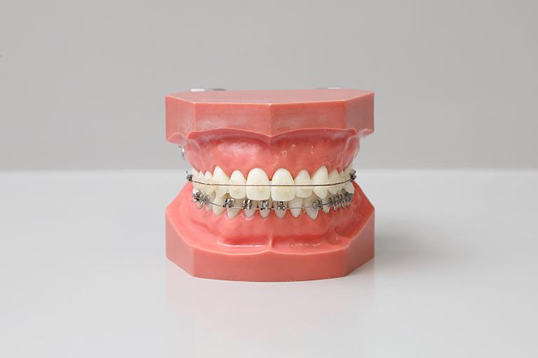 久喜市久喜の矯正・矯正歯科の関根歯科医院のブラケット矯正の流れ