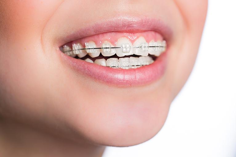 久喜市久喜の矯正・矯正歯科の関根歯科医院の小児矯正について