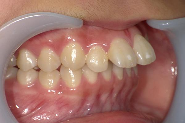 久喜市久喜の矯正・矯正歯科の関根歯科医院の治療前