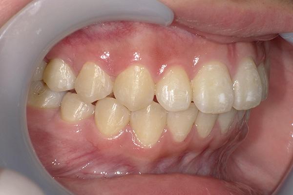 久喜市久喜の矯正・矯正歯科の関根歯科医院の治療後